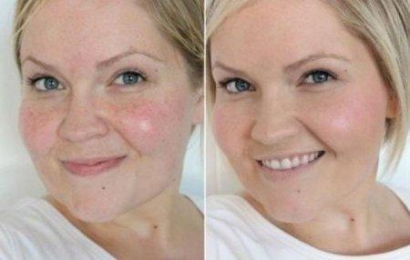 Ինչպե՞ս հավասարեցնել դեմքի մաշկի գույնը. հրաշք դիմակ՝ այս տարածված խնդրի լուծման համար
