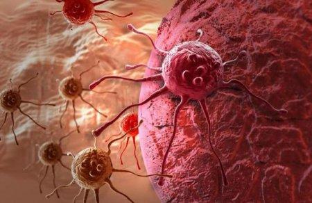 Ձվարանի քաղցկեղի  նախանշաններ