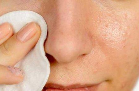 Մաքրեք դեմքը բշտիկներից, պիգմենտներից
