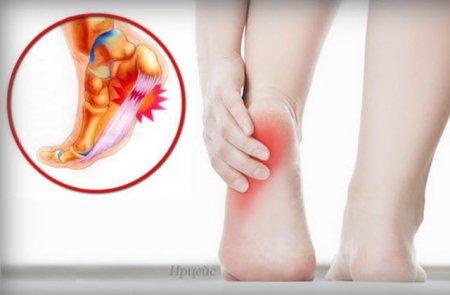Դադարեք դիմանալ ցավին․ ազատվեք կրունկի, ոտնաթաթի ցավից