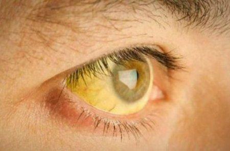 Ուշադիր եղեք. 6 նշան, որոնք վկայում են, որ լյարդը բորբոքված է