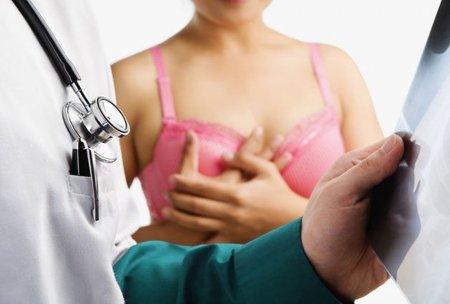 Կրծքագեղձի քաղցկեղից խուսափելու նոր միջոց է հայտնաբերվել