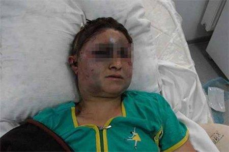 Լոռիում 60-ամյա տղամարդը երեխաների աչքի առաջ խոշտանգել է կնոջը՝ ծեծել, եռացրած ջուր լցրել վրան
