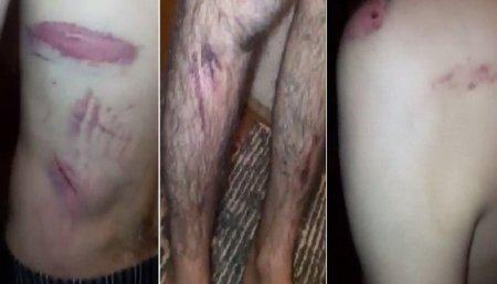 Տեսանյութեր. Սևանի «Տոտո» բուքմեյքերական կետում ոստիկանները դաժան ծեծի են ենթարկել Արա Մուրադյանին