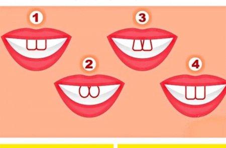 Թեստ. ինչպես կարող է ատամների ձևը պատմել՝ եսասե՞ր եք, թե՞ ոչ