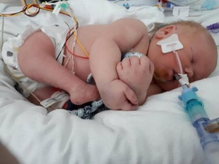 Առաջին անգամ շրջված ոտքերով և առանց հետույքի երեխա է ծնվել. լուսանկար