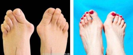 Ինչպես ազատվել ոտքերի կոշտուկներից