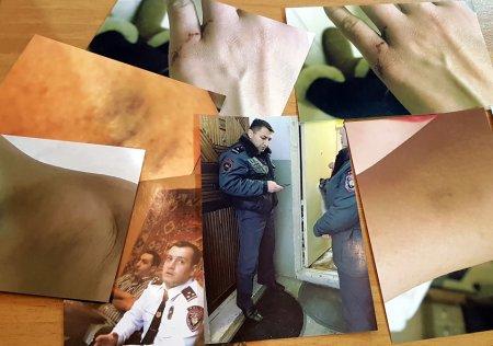 Տեսանյութ. Ոստիկանության մայոր Միհրան Սիրեկանյանը, տեսուչ Մանվելը  բռնություն են կիրառել 3 անչափահասների մոր նկատմամբ. Լուսանկարներ