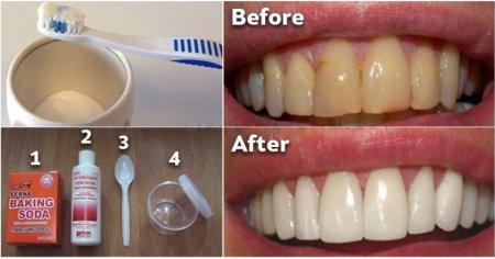 Ինչպես ազատվել ատամնափառից և սպիտակեցնել ատամներն առանց թանկարժեք պրոցեդուրաների