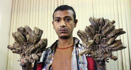 «Մարդ-ծառը» կրկին՝ բժիշկների մոտ.պալարները ամբողջությամբ պատել են  նրա ձեռքերը եւ ոտնաթաթերը. լուսանկարներ