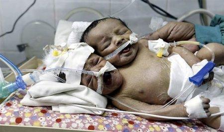 Արտասովոր սիամական երկվորյակներ են ծնվել.2 գլուխ, 2 սիրտ, 2 ստամոքս՝մեկ մարմնում