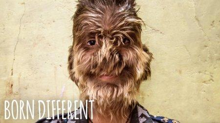 Տեսանյութ. Հազվագյուտ հիվանդություն ունեցող մազածածկ13-ամյա տղան ապրում է երջանիկ եւ լիարժեք կյանքով