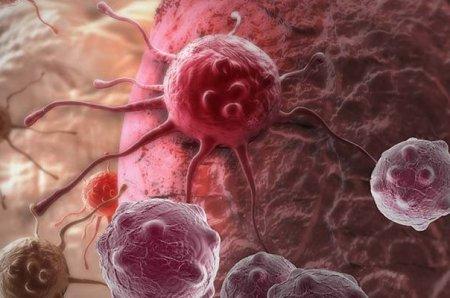 Քաղցկեղի հազվագյուտ եւ շատ ագրեսիվ տեսակ.կինը քաղցկեղի ախատանշանները հղիության հետ է շփոթել