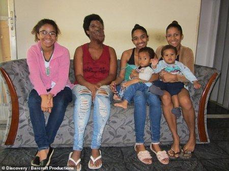 40-ամյա բրազիլուհին չի վհատվում.Բժիշկները չեն կարողանում հեռացնել ահավոր ուռուցքը