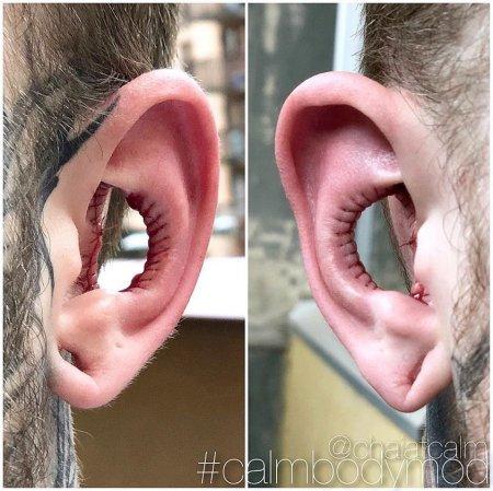 Մոդիֆիկացիայի վերջին ճիչը.տղամարդը վիրաբույժին խնդրել է հեռացնել ականջների մի մասը