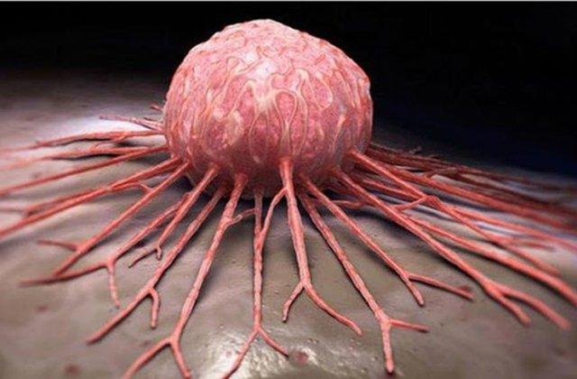 ՌԴ-ում դեղամիջոց է մշակվել, որը կնպաստի մետաստազներ տված քաղցկեղների բուժմանը