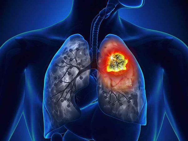 Չծխողների շրջանում թոքերի ուռուցքների թիվը զգալիորեն աճել է. որն է պատճառը