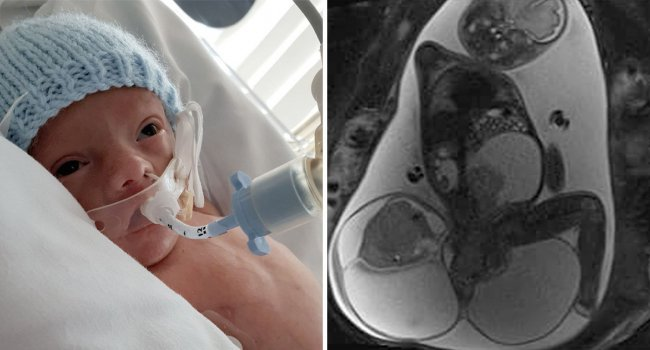 Նորածին երեխային, որի պոչուկին հենց իր չափով ուռուցք կար՝ հաջողվեց փրկել