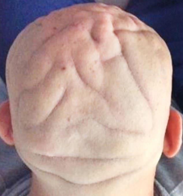 37-ամյա իտալացու գլուխը ձեւախեղվել է օրգանիզմում աճի հորմոնի ավելցուկի պատճառով