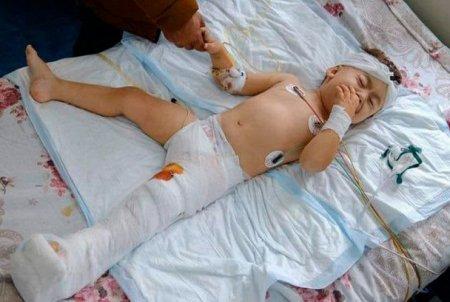 Բարբարոսների  կողմից վիրավորված 2-ամյա երեխայի՝  գլխի շրջանում կատարված բարդ վիրահատությունն անցել  է հաջող